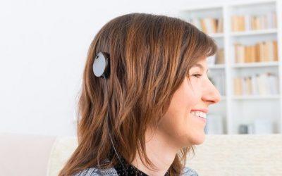 Cochlear Implants FAQ
